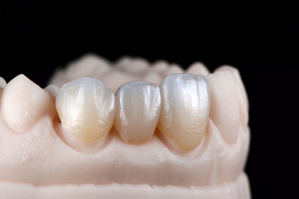 High Translucent Zirconia