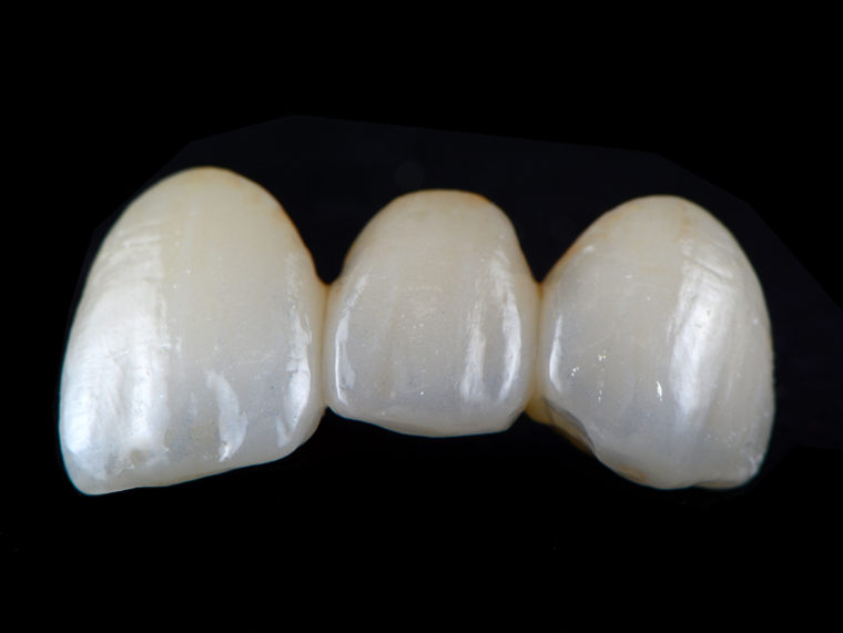 High Translucent Zirconia